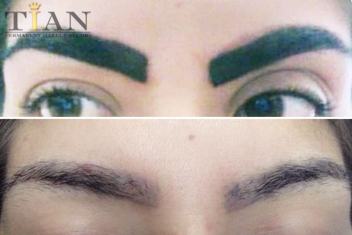 Removal - Microblading and Permanent Makeup TIAN Studio